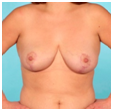 after breast reduction pictures