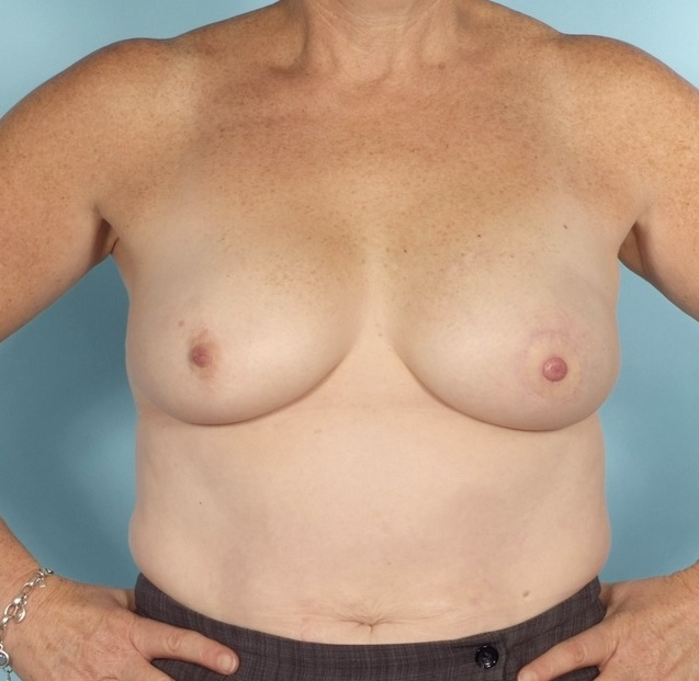 after breast reconstruction surgery pictures
