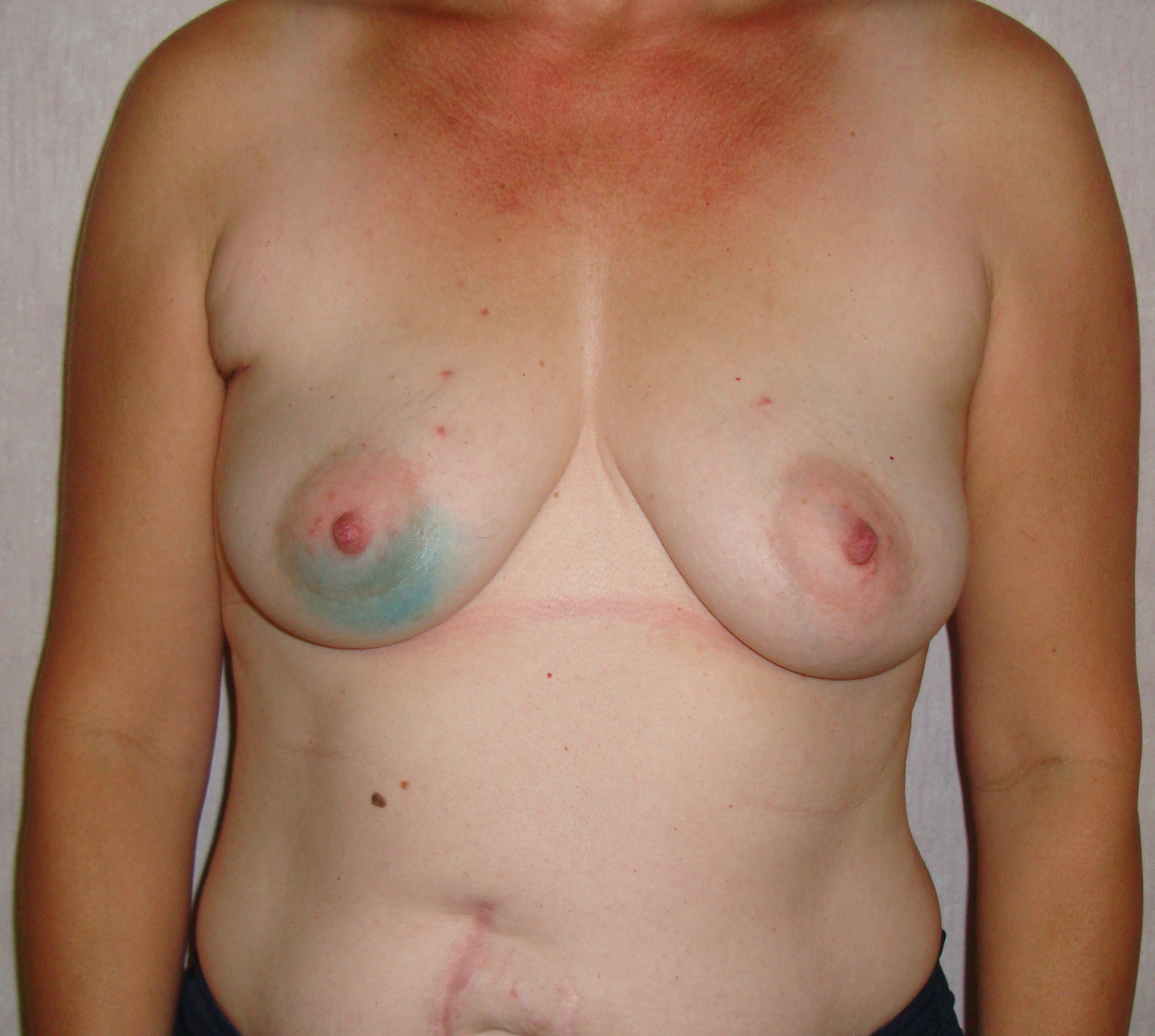 Before breast reconstruction pictures
