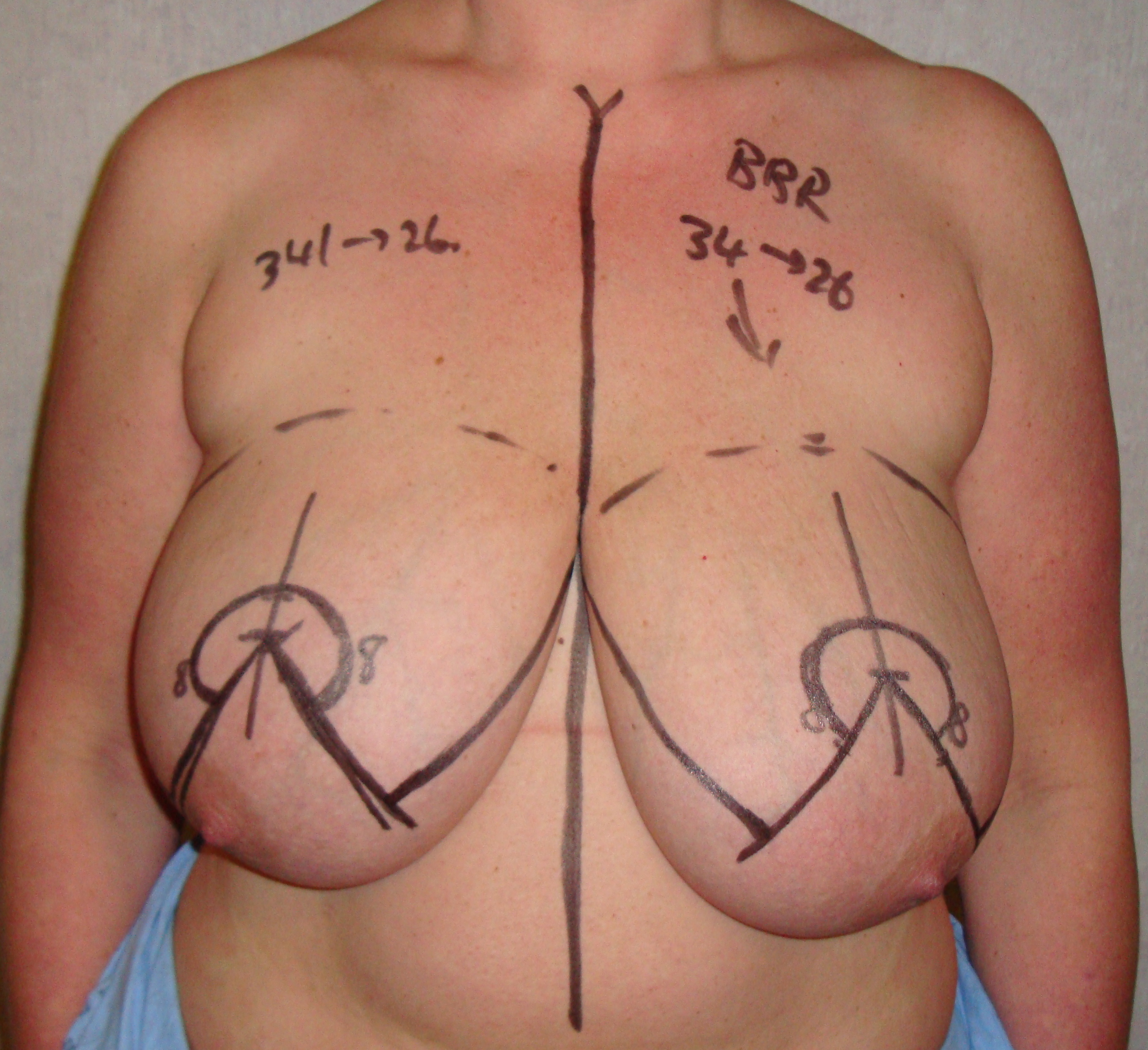 before breast reduction pictures